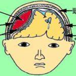 【介護支援】ケアマネ試験から知識吸収(認知症と意識障害)